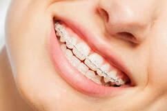 Tanden Rechtzetten Met Een Beugel Tandartsen 14 Tandartsen 14